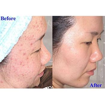 Anera Mana Soap MD10-мыло пилинг с гликолевой кислотой